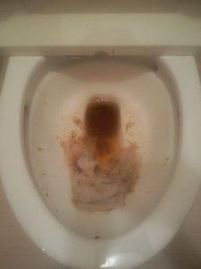 杉並区のトイレつまり事例(修理前)